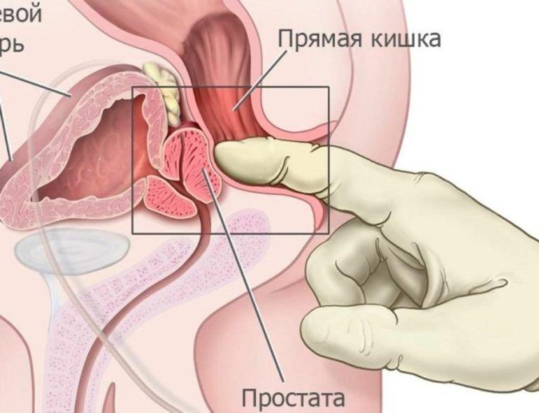 массаж простаты железы