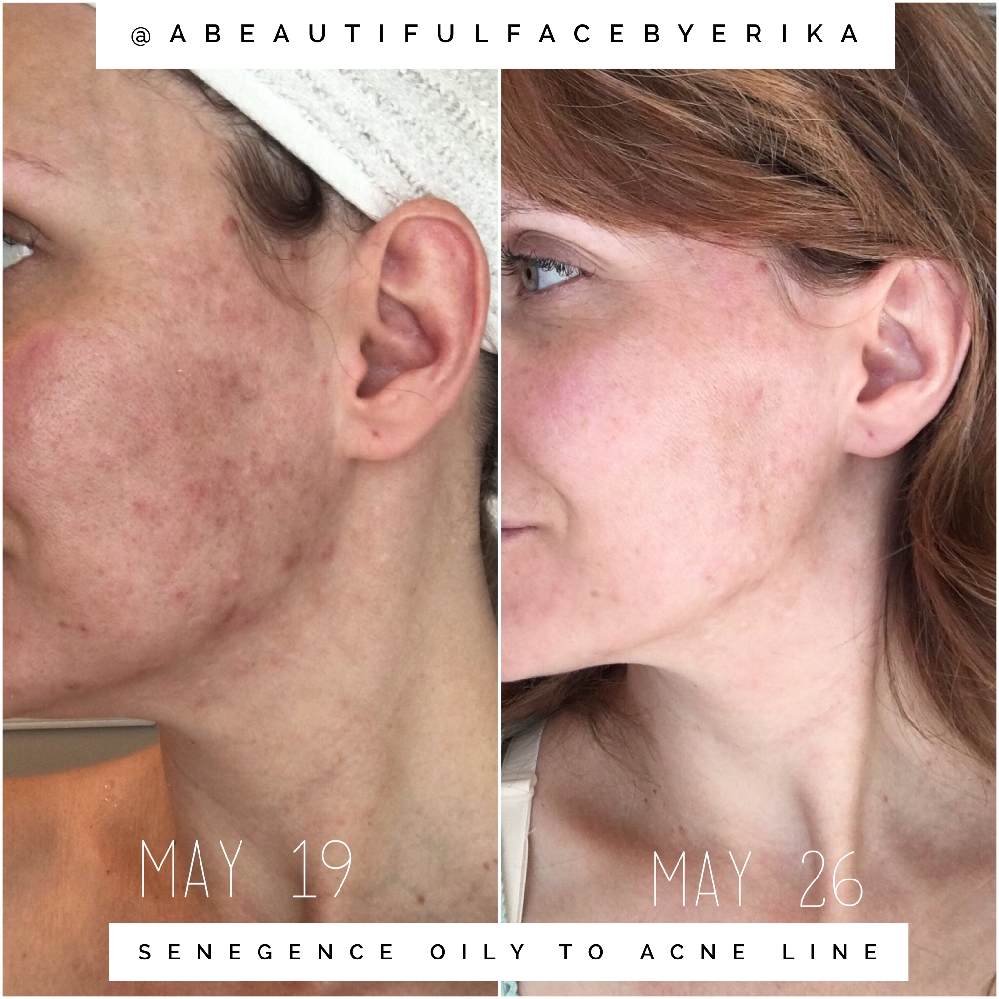 Before And After Adult Acne Senegence Distributor Id  Oily To Acne Line Cleanser Moisturizer And Spot On Treatment