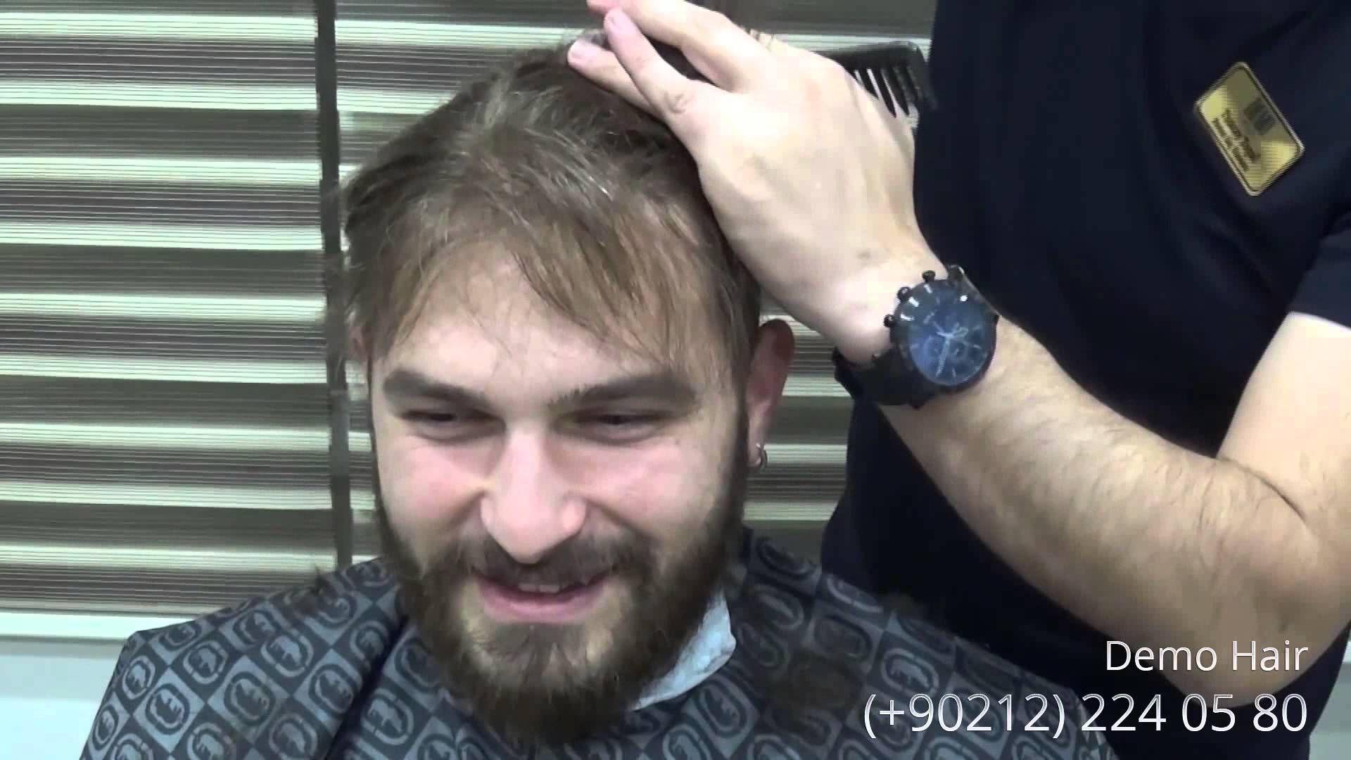 Protez Sac Uygulamasi Demodemo Hair Protezsac Kesim Goruntuleri Yorumu Icin Daha Detayli Bilgi Icin Lutfen Tiklayin Http Www Demohair Com Hair Repla Goruntuler Ile Sac