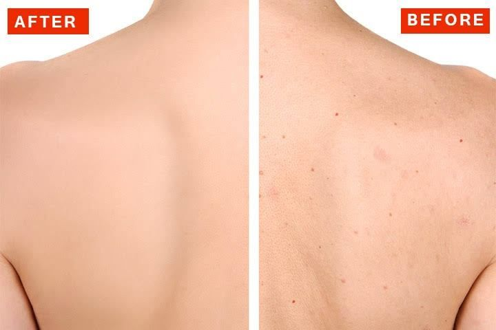 How To Get Rid Of Pimples At Your Back