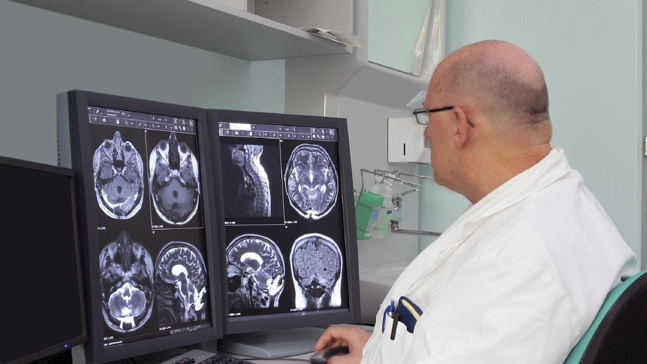 [Video] In order to diagnose Multiple Sclerosis in a person, a doctor must perform a complete neurological exam.