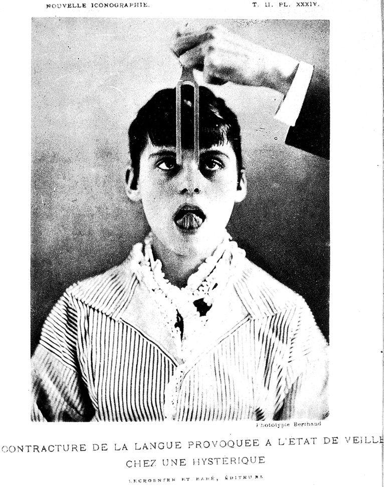 Photos Of Infantilists Paul Richer Gonflement Du Cou Chez