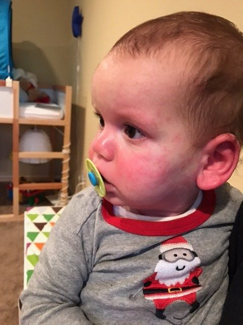 Raising a child with allergies and eczema. | Allergies ...