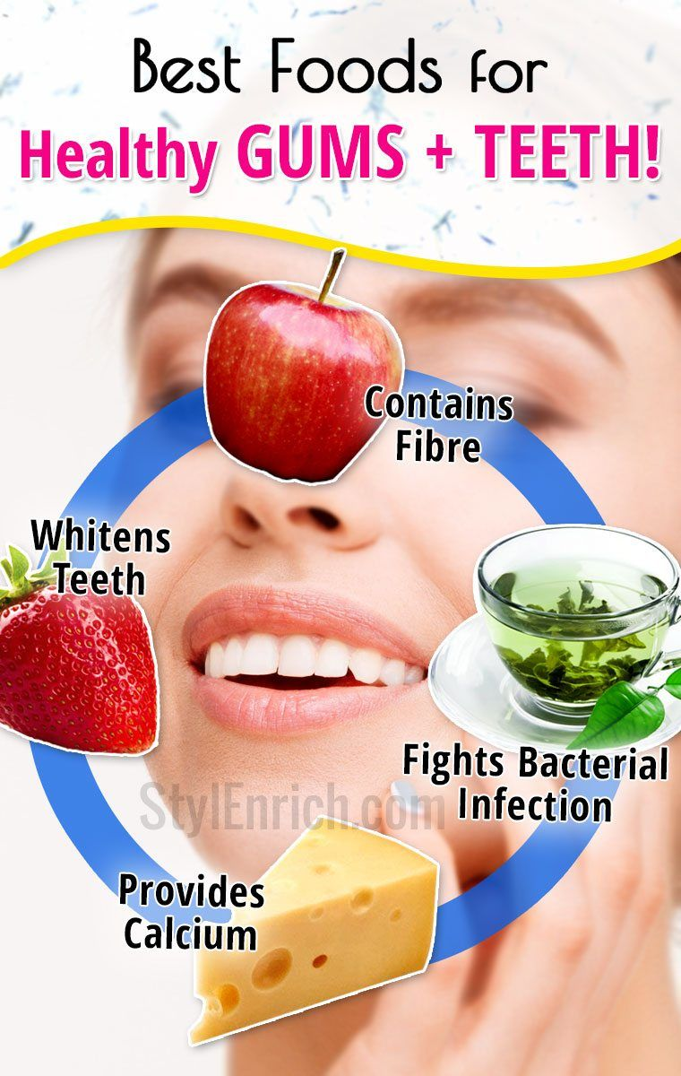 Foods For Healthy Gums And Strong Teeth Teeth Health Gum Care Gum Health