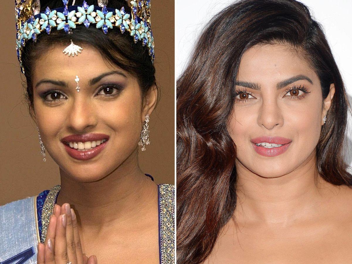 Priyanka Chopra Before And After Celebrities Before And After Nose Job Celebrity Plastic Surgery