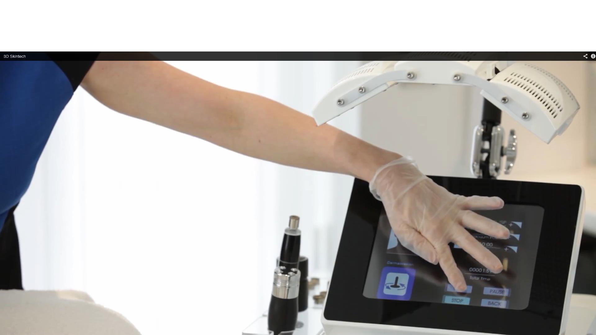 Rotational Diamond Peel Microdermabrasion technology uses