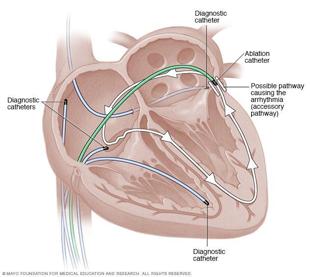 Cardiac catheter ablation | I\'m so Tachy | Pinterest | Cardiology ...