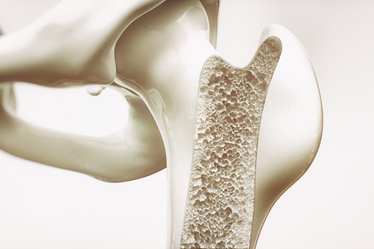 29++ Osteoporosis at 55 years old info
