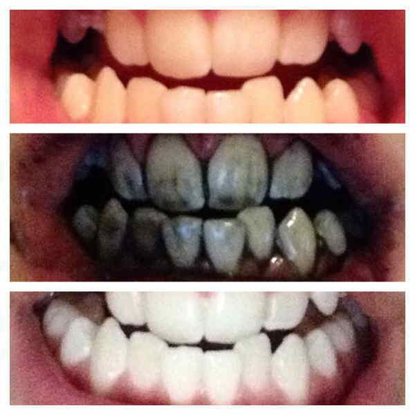 Use Charcoal On Your Teeth It Just Works Pichelp Health Teeth