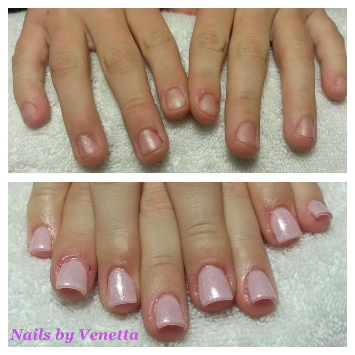 Before After Pink Gel Polish On Acrylic Nails
