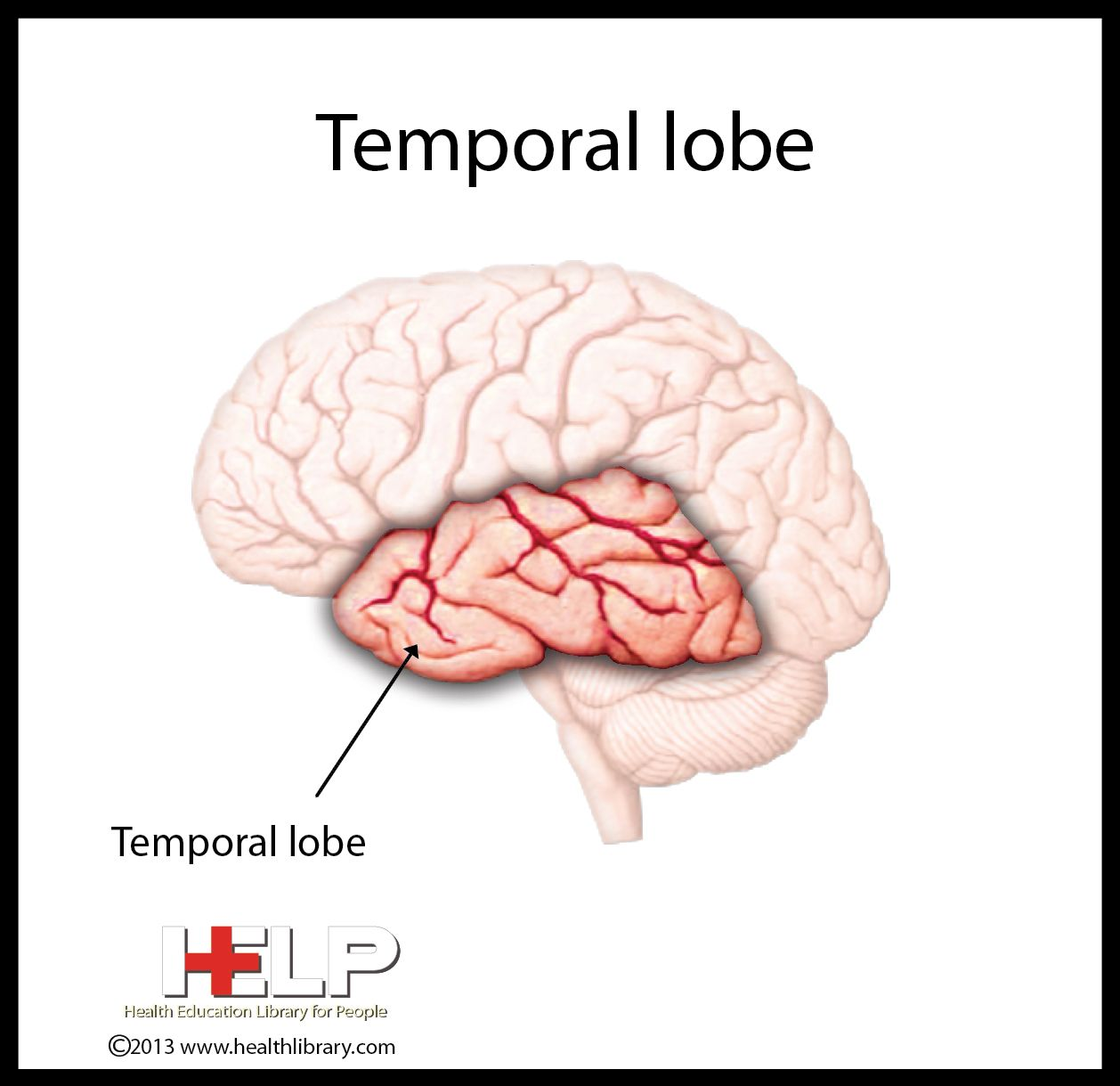 Temporal Lobe   Nervous System   Pinterest