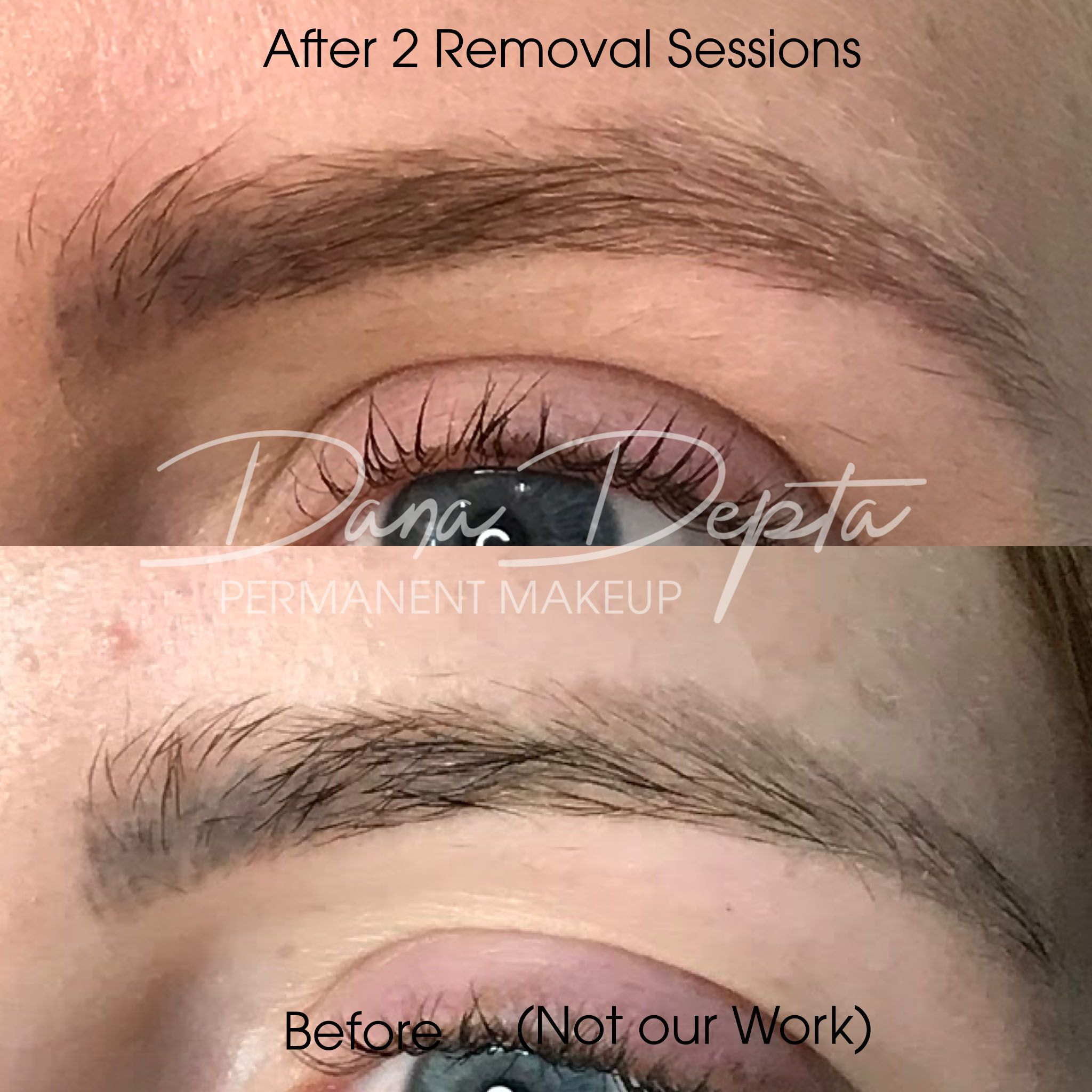 Saline Removal is Perfect for Botched Eyebrows Permanent