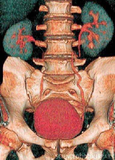 Kidneys and bladder, 3D CT scan | Magnific | Pinterest | Radiología ...