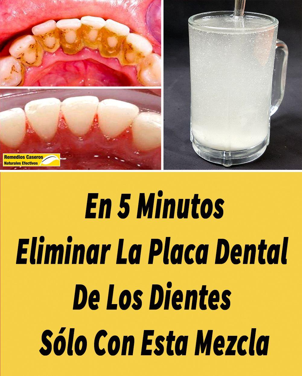 En 5 Minutos Eliminar La Placa Dental De Los Dientes Sólo Con Esta Mezcla Placas Dentales Limpiar Dientes Eliminar Sarro Dientes
