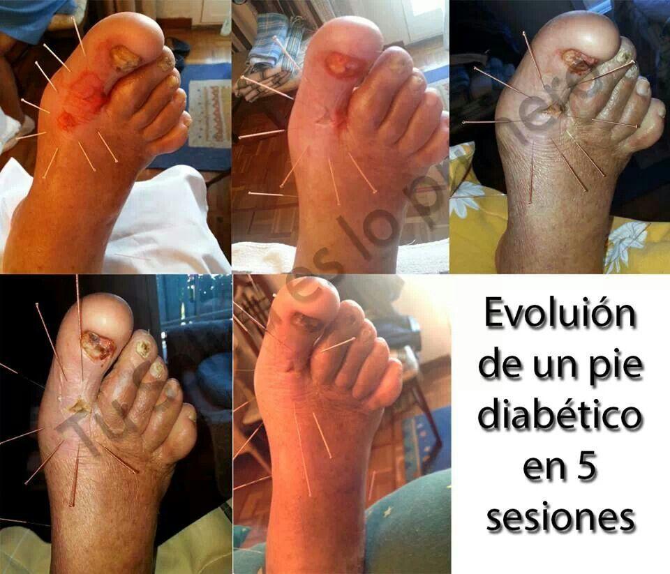 Evolución del un Pie #Diabético con acupuntura. La evolucíon es muy ...