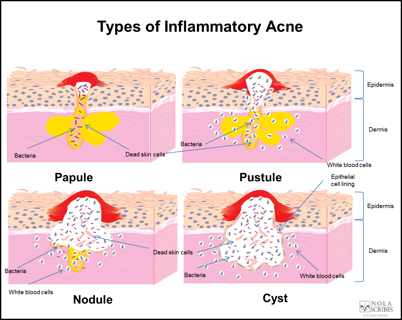 cystic acne diagram health, medicine and anatomy reference papule pimple how to treat cystic acne at home