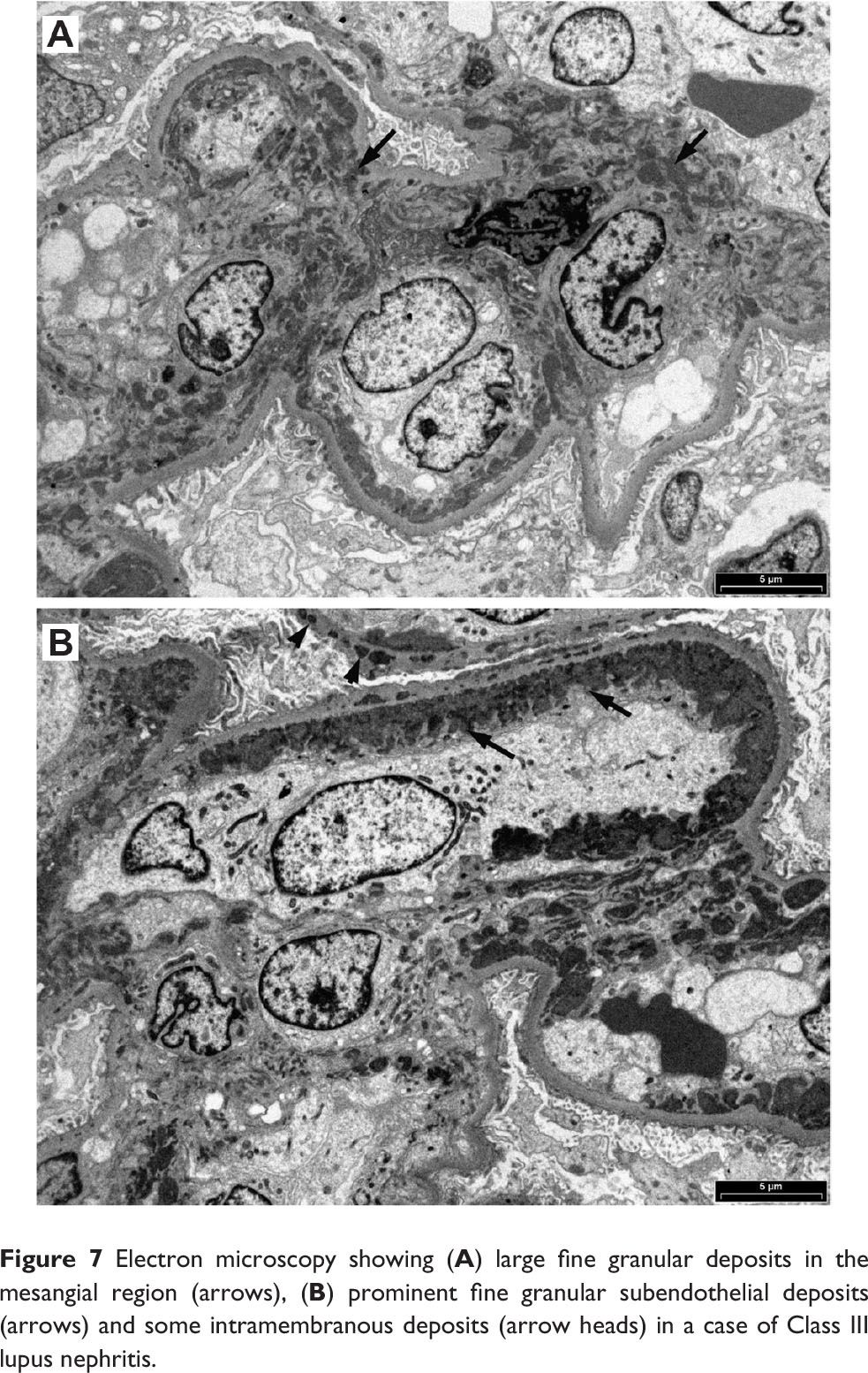 Figure 7 Electron microscopy showing (A) large fine granular deposits in the mesangial region (arrows), (B) prominent fine granular subendothelial deposits (arrows) and some intramembranous deposits (arrow heads) in a case of Class III lupus nephritis.