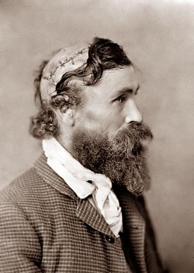 Robert McGee. 1890. Scalped by theSiouxas a child and survived.