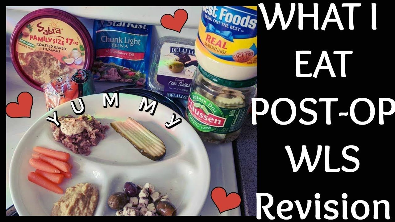 What I Eat In A Day Post Op Gastric Bypass Wls Revision Gastric Bypass Eat Bariatric Surgery Diet