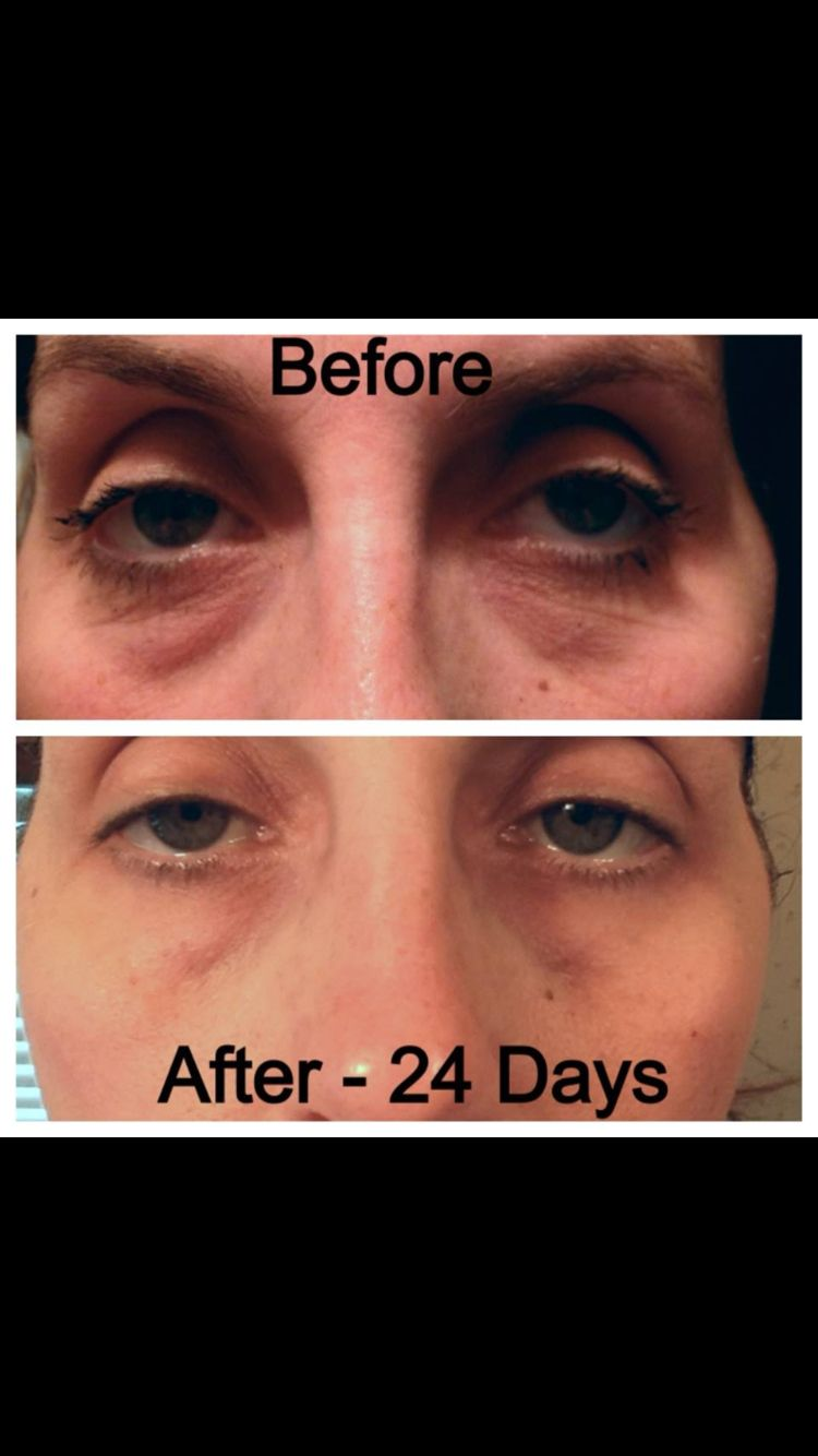 Finally a product that WORKS Nerium gives amazing dramatic results