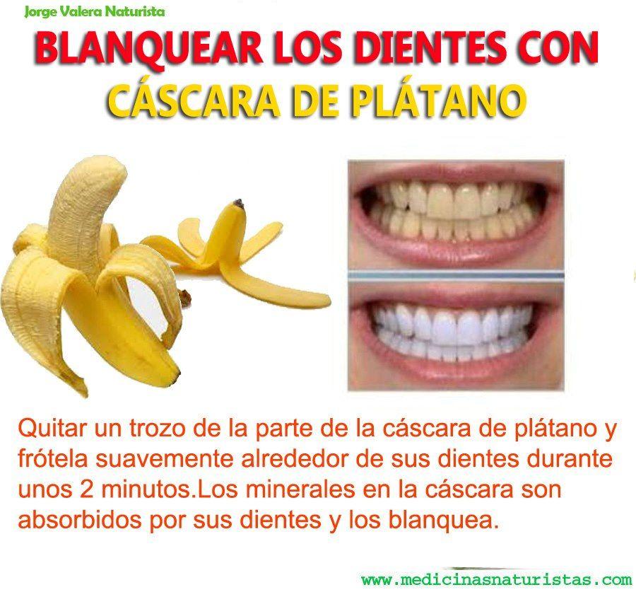 Como blanquear los dientes con cascaras de pl tano annie pinterest natural and remedies - Como blanquear los dientes en casa ...