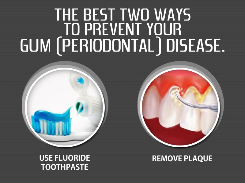 The best two ways to prevent gum disease Use fluoride