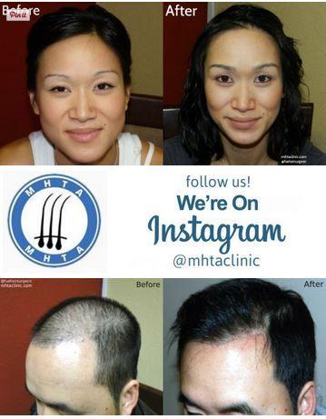 San Francisco Bay Area Hair Transplant And Hair Restoration Mhta Clinic Mhtaclinic Hair Restoration Hair Transplant Transplant