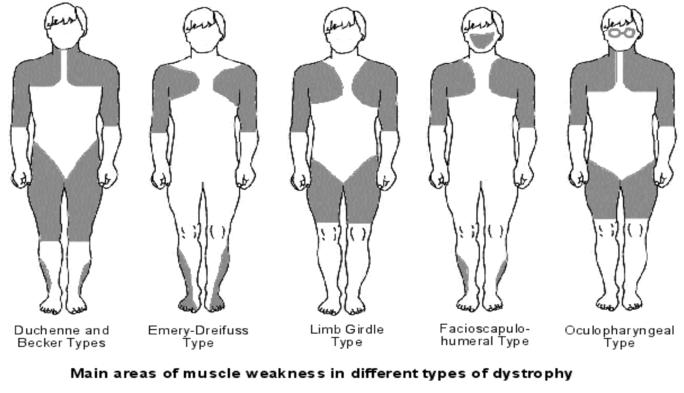 Muscular Dystrophy, Emery-Dreifuss; Muscular Dystrophy