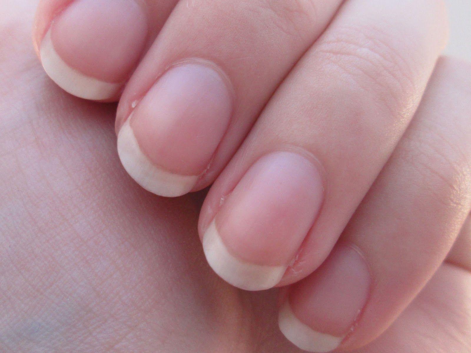 Img 1010 Jpg 1600 1200 Fingernail Health Signs Moons On Fingernails Nail Health Signs