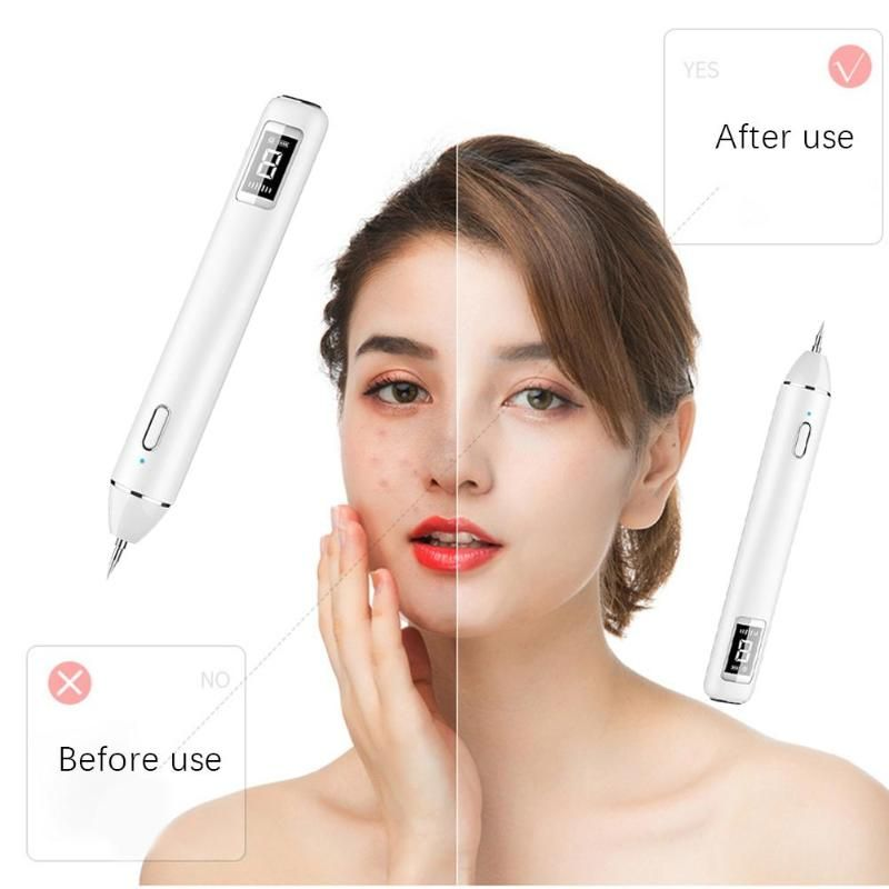 Tattoo Removal Laser Pen Reviews