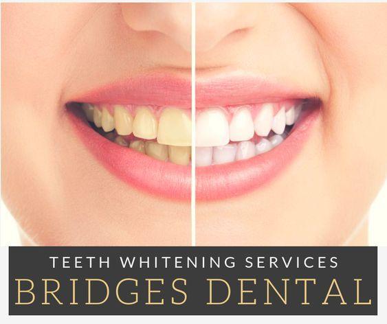 Dental Services In Valrico, FL In 2020