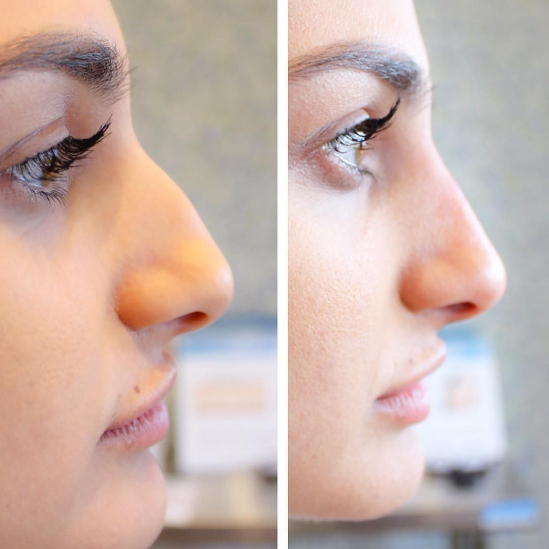 What Is A NonSurgical Nose Job Temporary Filler Nose