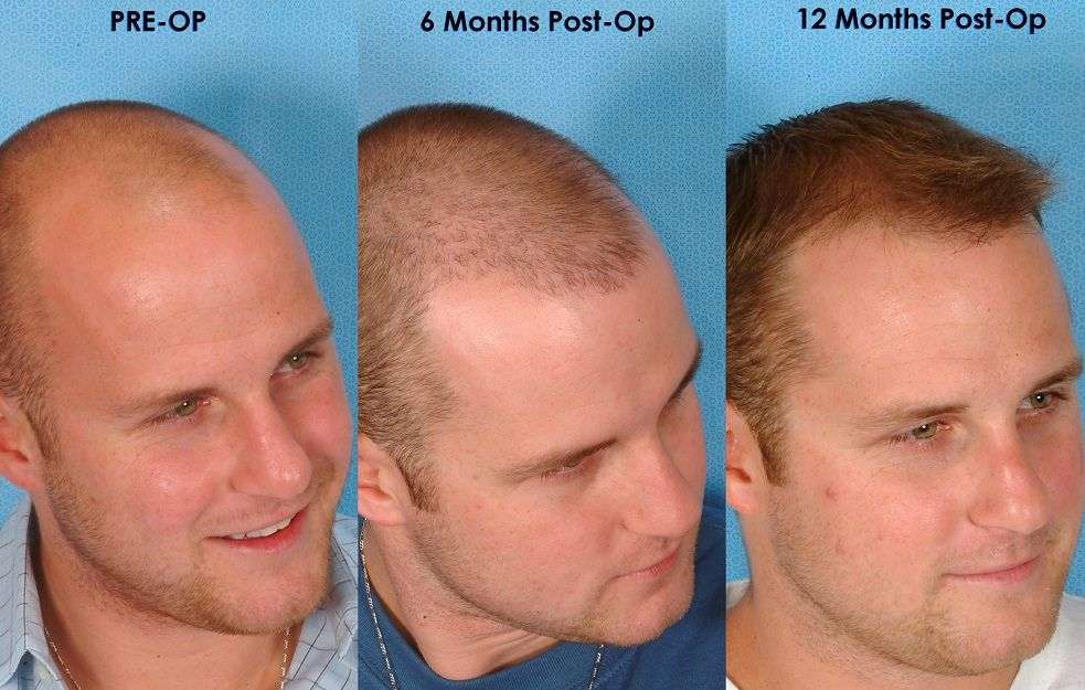 If you think that hair transplantation doesn't work, here