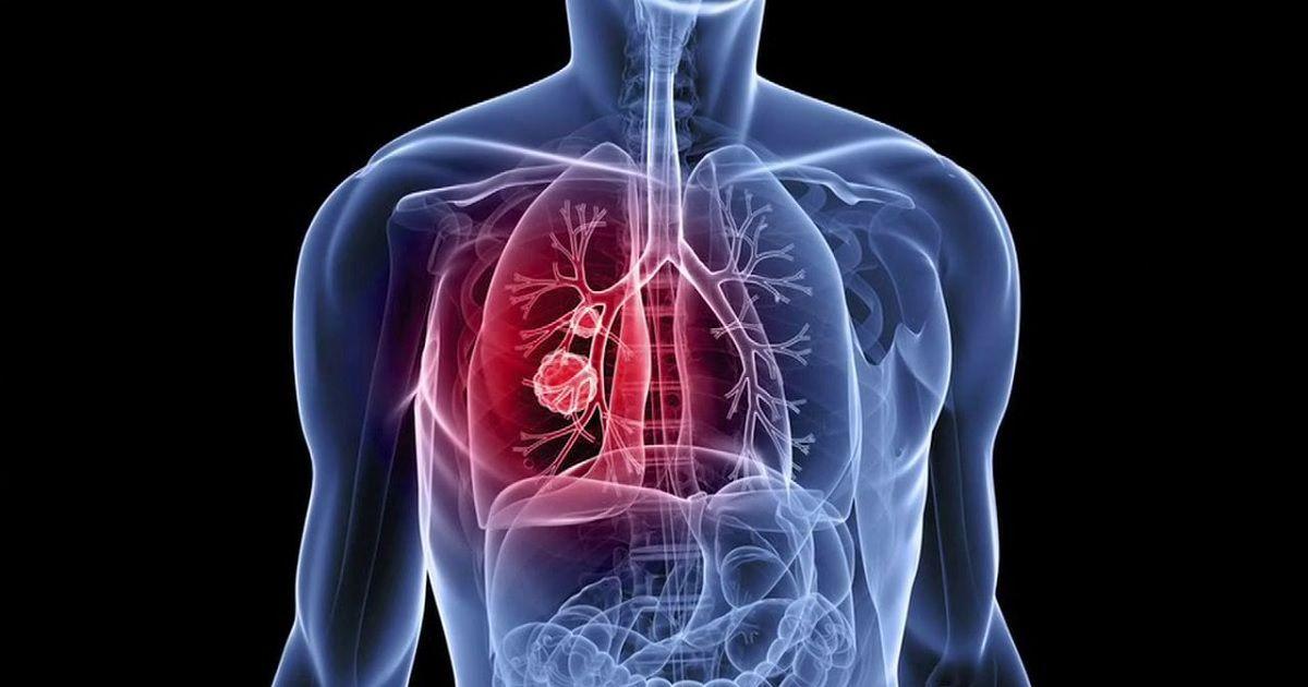 """14 POSSIBILI SINTOMI DI TUMORE SPESSO SOTTOVALUTATI Impariamo a individuare i sintomi di tumore per intervenire in tempo. Scopriamo insieme 14 """"campanelli d'allarme"""". http://bit.ly/2qiuOyl"""