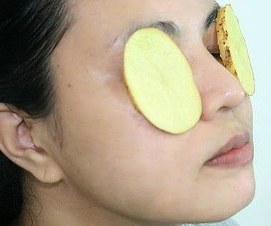 Top 10 Tips To Get Rid Of Under Eye Puffiness ...