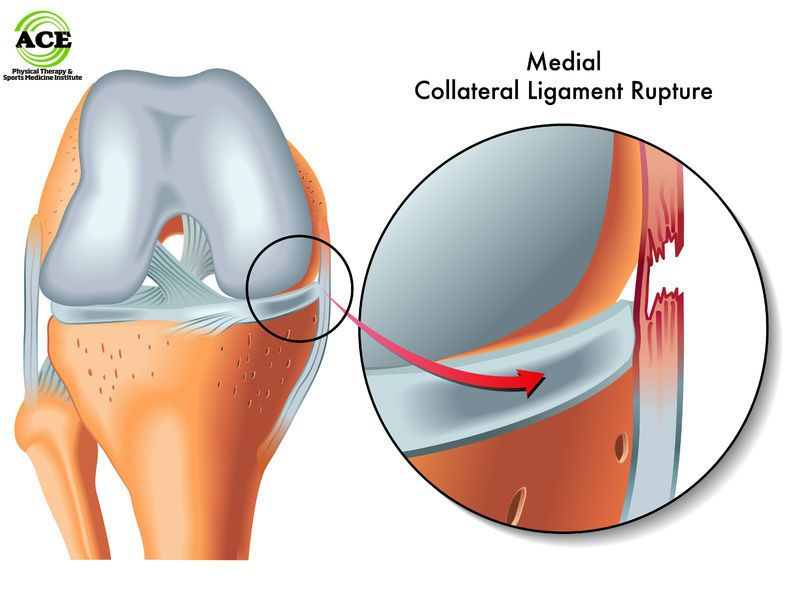 Medial Collateral Ligament Mcl Knee Injuries By Ace Physical