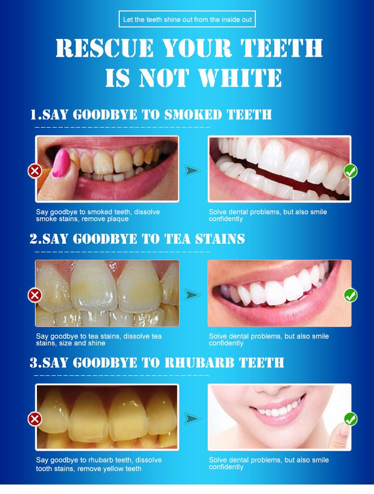 1b3e458171f897cb87c3d6e09b3ab603 - How To Get Rid Of White Stain On Teeth
