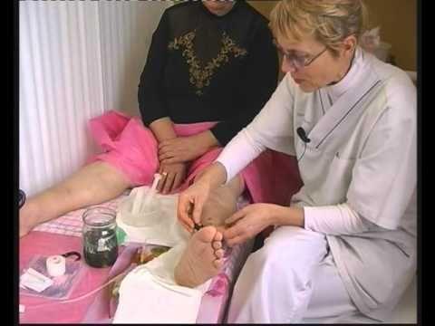 лечение варикоза в домашних условиях отзывы