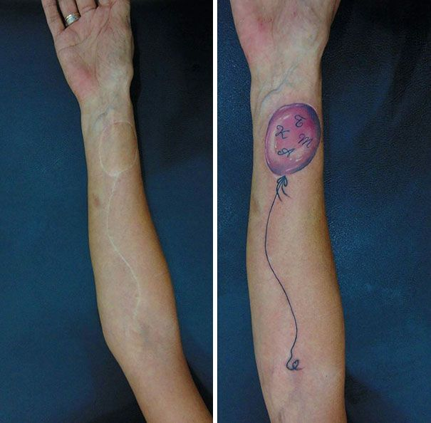 211 Amazing Tattoos That Turn Scars Into Works Of Art | Medical ...