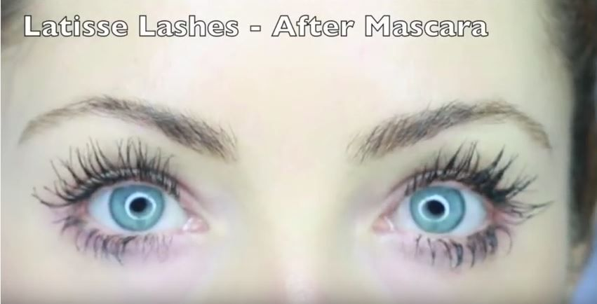 1929253eda1 Here is an honest, real review of Latisse eyelash enhancer. Dahlhouse  discusses the pros and cons of use and gives details and photos of her  experience.