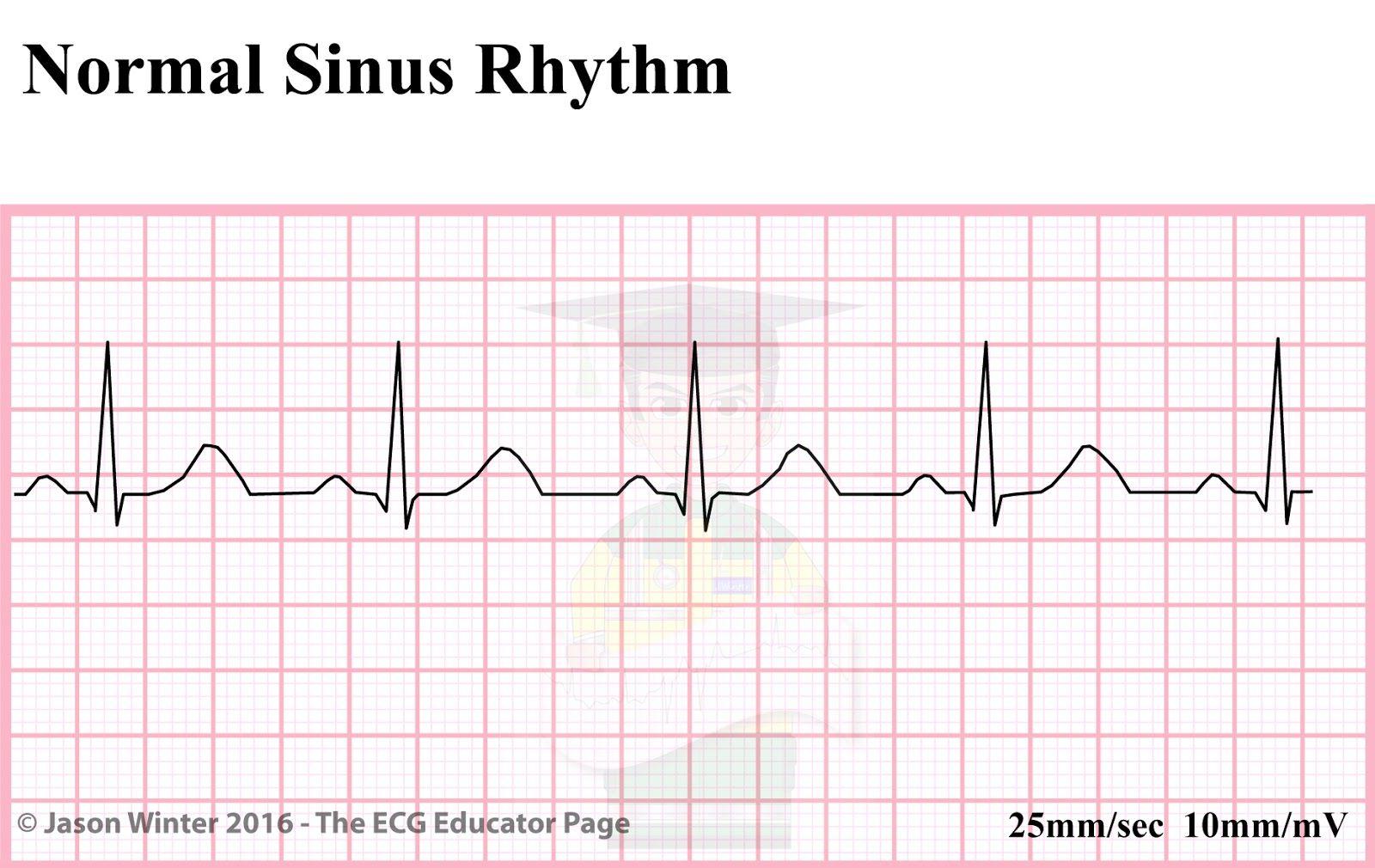 ECG Educator Blog : Sinoatrial Node rhythms | nursing school