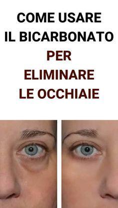 Photo of Hai Le Occhiaie? Metti Del Bicarbonato Sotto Gli Occhi Ed El…