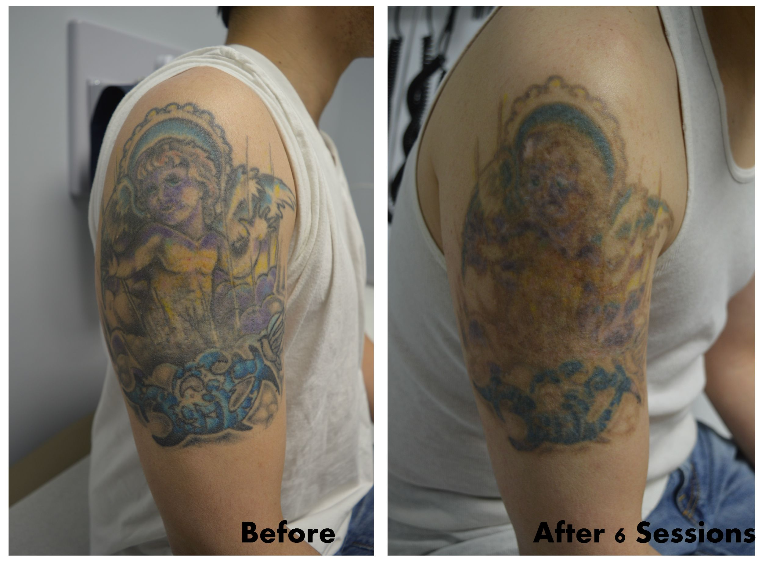 Full color tattoo removal after 6 sessions! Look at that fading ...