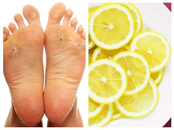 cum să vindeci rapid picioarele în vopsire)