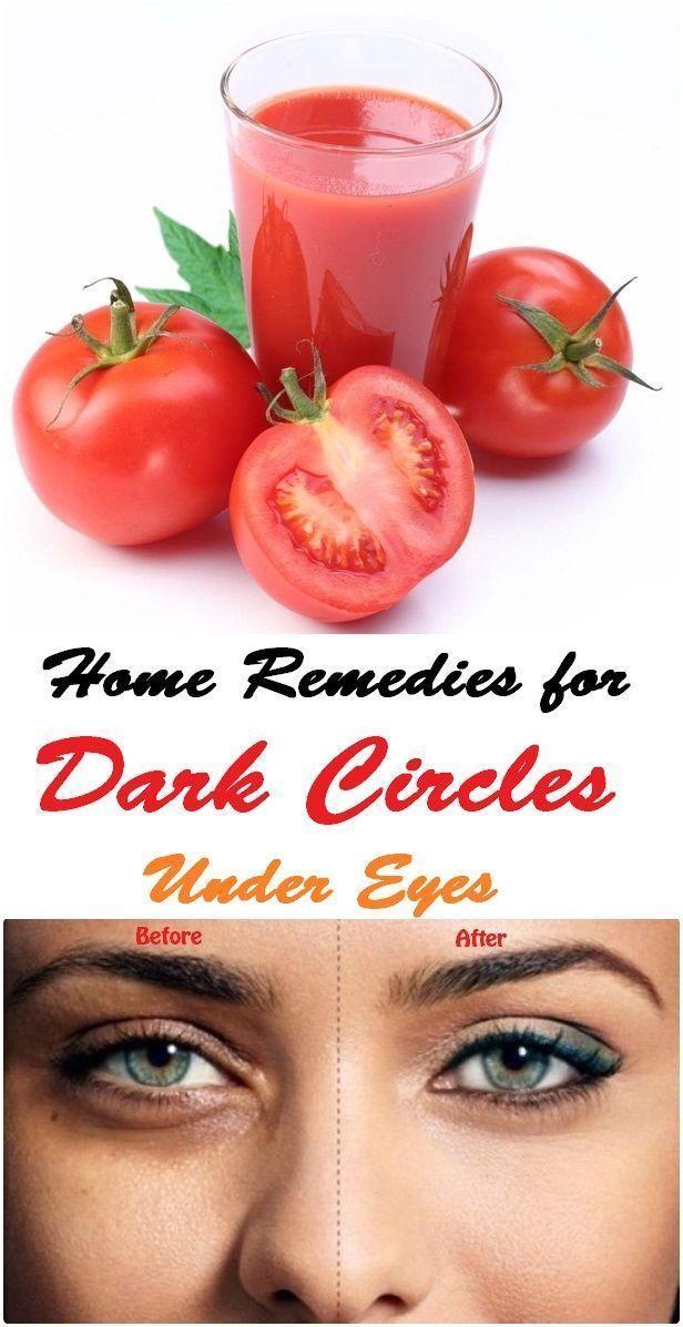 Home Remedies for Dark Circles Under Eyes #UnderEyesSerum ...