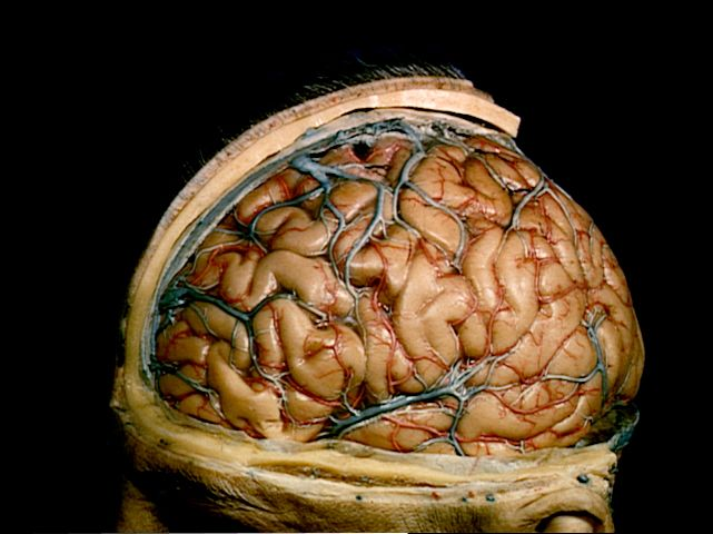 A Dissection Which Has Removed The Scalp, SKULL And Dura To Show The Cerebral Veins And Cortical Art