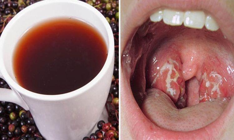 causas de infeccion bacteriana en la garganta