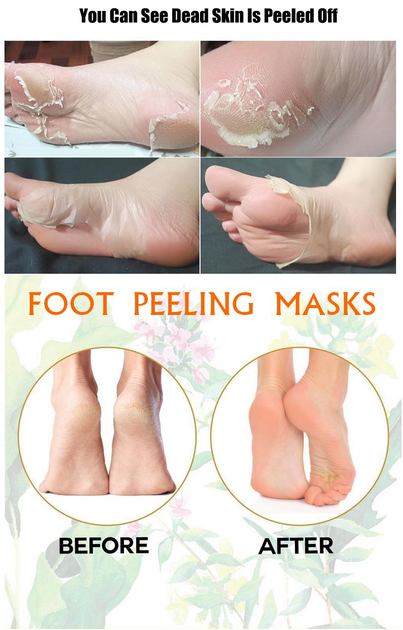 1b62420d365e3597af11fe09c6b3782f - How To Get Rid Of Dry Scaly Skin On Feet
