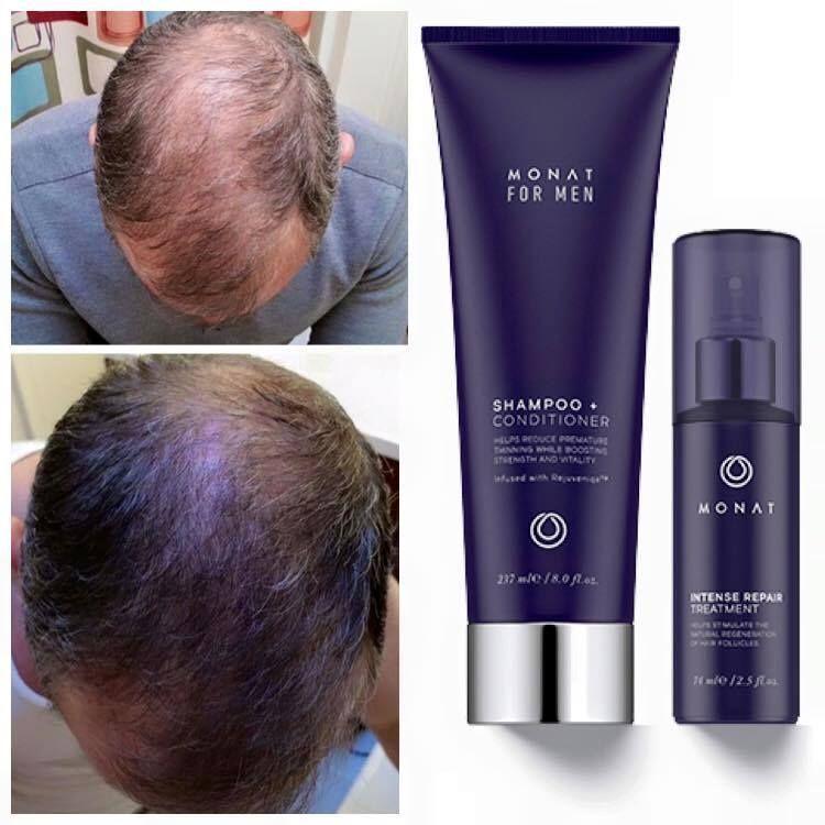 Before and After Minat | Help hair loss, Hair loss ...