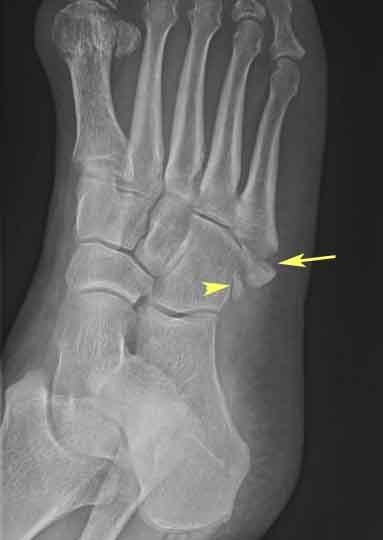 Avulsion Of The Fifth Proximal Metatarsal X Ray Of Foot Avulsion Fracture X Ray Radiology